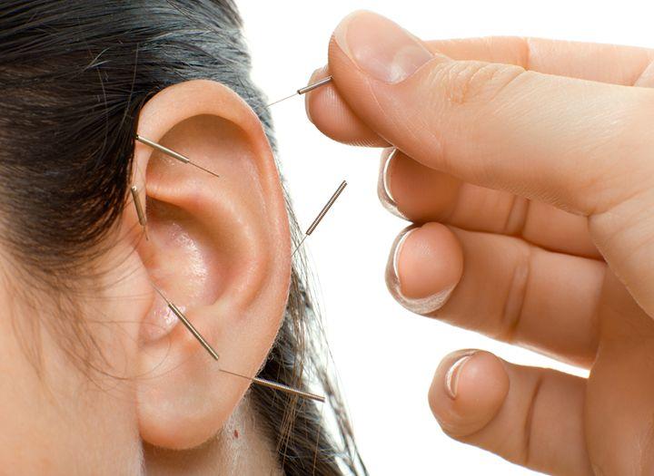 Fogyás akupunktúrával 12c4d9361c