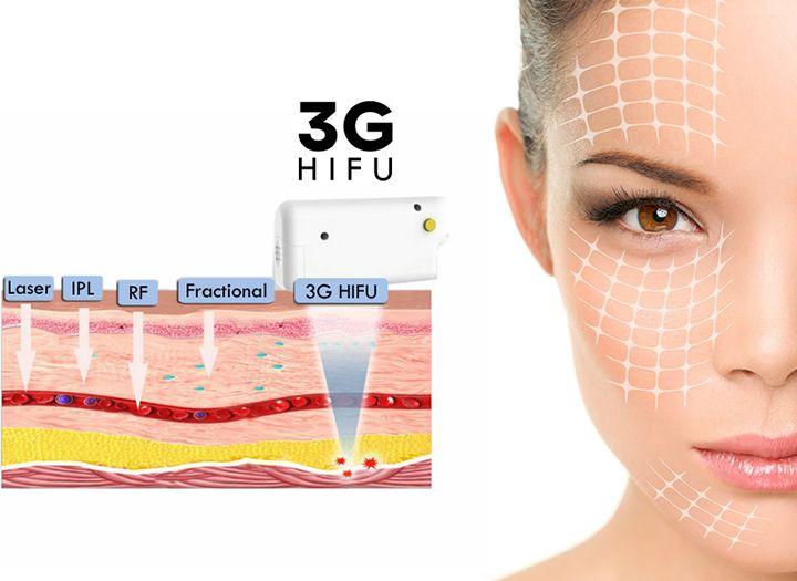 b37c9e1fbe 3G HIFU a Luxury Clinicben - Szépség (pl. kozmetikai kezelések) kupon